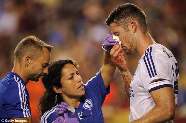 2AEBB66C00000578-0-Gary_Cahill_suffered_a_blow_to_the_face_in_the_friendly_against_-a-61_1438348283703